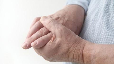 00018_health_Dr Liu column_arthritis